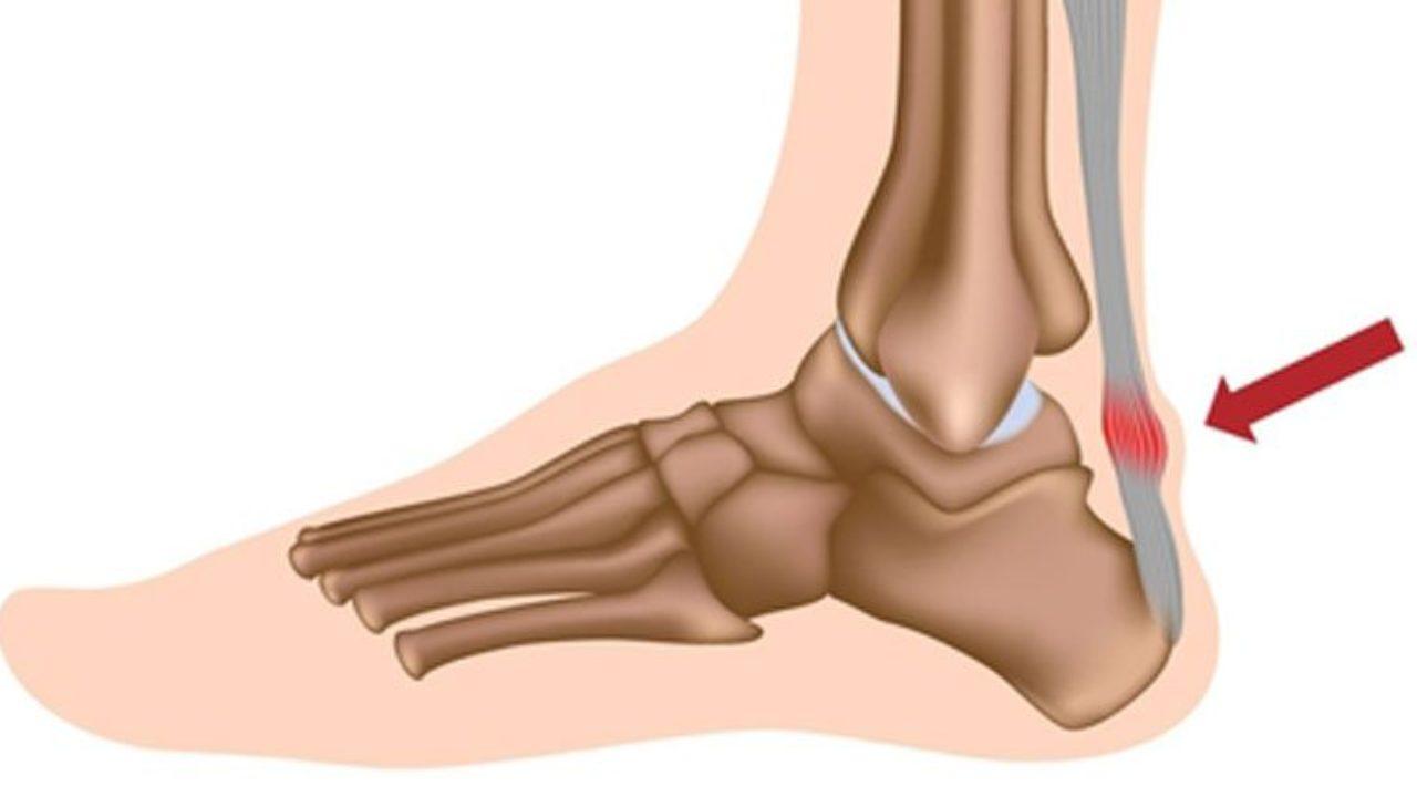 Những ai thường mắc phải đứt gân gót chân?