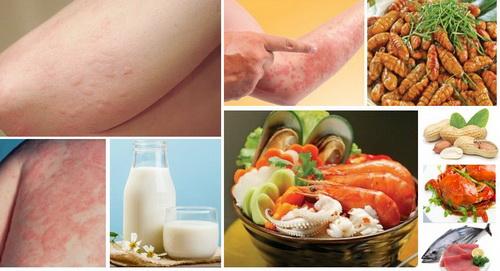 Nghiên cứu và kinh nghiệm đã chỉ ra rằng ăn thực phẩm tốt có thể giảm viêm và giảm dị ứng. Dưới đây là một số sản phẩm thực sự tốt cho những người bị dị ứng.