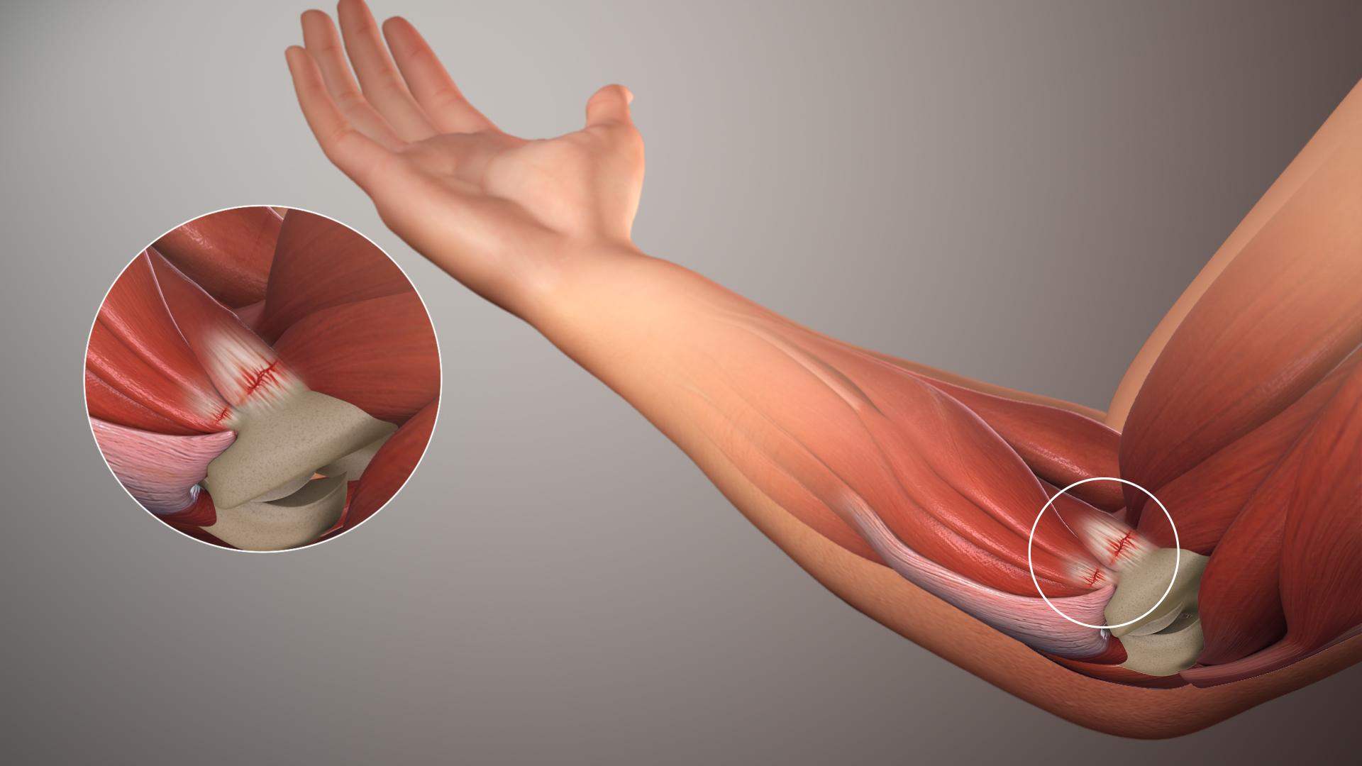 Bệnh viêm lồi cầu ngoài xương cánh tay khá phổ biến